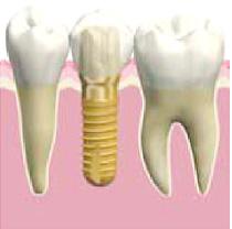 人工の歯の取り付け